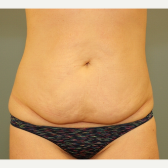 Tummy Tuck before 3003999