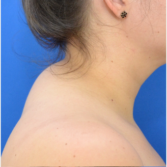 Buffalo Hump Reduction with Laser Liposuction before 3804089