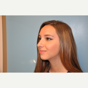 18-24 year old woman treated with Rhinoplasty after 3624810
