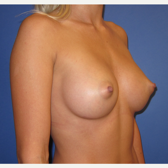 25-34 year old woman treated with Breast Augmentation (R. 295cc, L. 275cc) after 3544341