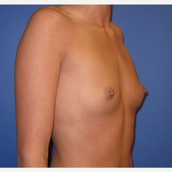 25-34 year old woman treated with Breast Augmentation (R. 295cc, L. 275cc) before 3544341