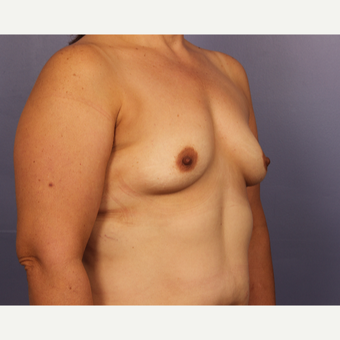 45-54 year old woman treated with Breast Augmentation before 3671533