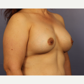 45-54 year old woman treated with Breast Augmentation after 3671533
