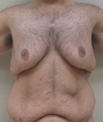 28 year old male with gynecomastia who underwent breast reduction before 1422638