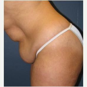 Tummy Tuck before 3720540