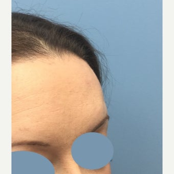 25-34 year old woman treated for Scar Removal after 2423723