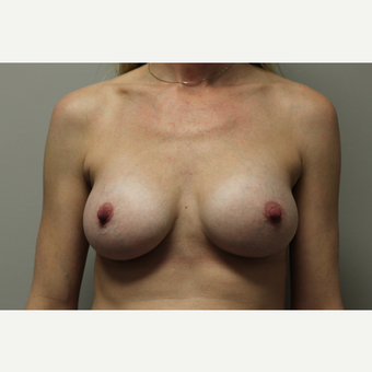 35-44 year old woman treated with Breast Augmentation after 3651998