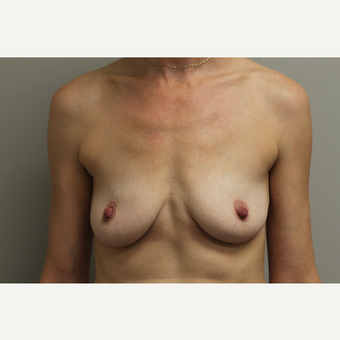 35-44 year old woman treated with Breast Augmentation before 3651998