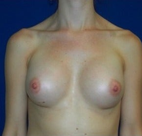 25-34 year old woman treated with Breast Augmentation after 3131761