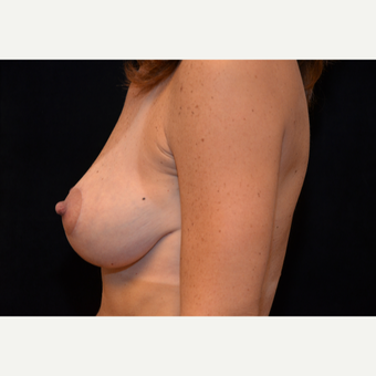 45-54 year old woman treated with Breast Lift after 3576079
