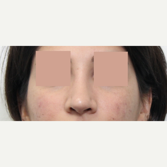 25-34 year old woman treated with Revision Rhinoplasty after 3777235