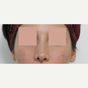 25-34 year old woman treated with Revision Rhinoplasty before 3777235
