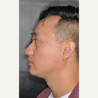 35-44 year old man treated with Nose Surgery 8 months post-op before 3500073