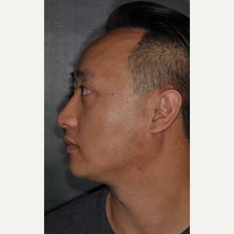 35-44 year old man treated with Nose Surgery 8 months post-op after 3500073