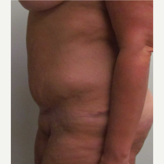 Tummy Tuck for this 39 Year Old Woman after 3092731