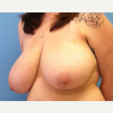 Breast Reduction before 3278933