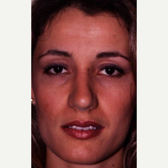 25-34 year old woman treated with Rhinoplasty after 3521263
