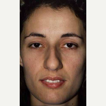 25-34 year old woman treated with Rhinoplasty before 3521263