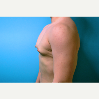 18-24 year old man treated with Male Breast Reduction before 2998859
