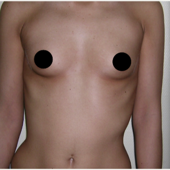 25-34 year old woman treated with Breast Implant Revision before 3184667