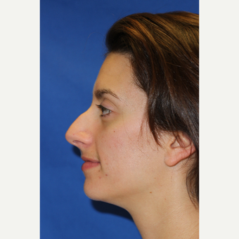 24 year old female treated with Rhinoplasty before 3843914