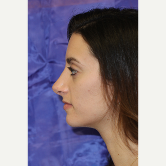 24 year old female treated with Rhinoplasty after 3843914