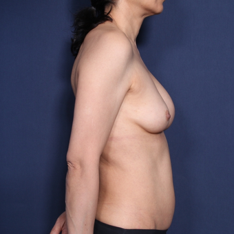 55-64 year old woman treated with Breast Implant Revision (view 2 of 2) before 3129534