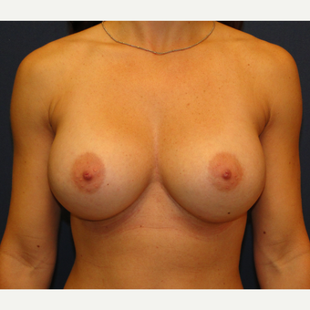 35-44 year old woman treated with Breast Augmentation after 3241293
