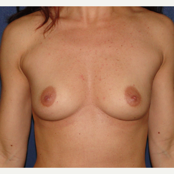 35-44 year old woman treated with Breast Augmentation before 3241293