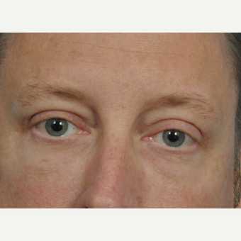 45-54 year old man treated with Eye Bags Treatment after 2833669