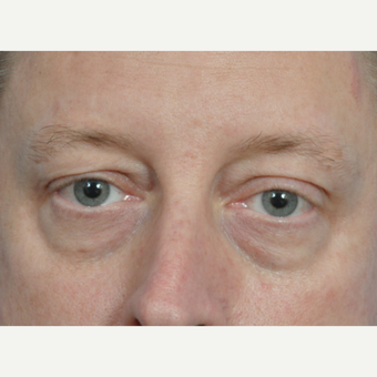 45-54 year old man treated with Eye Bags Treatment before 2833669