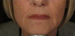 45-54 year old woman treated with Halo Laser before 2285322