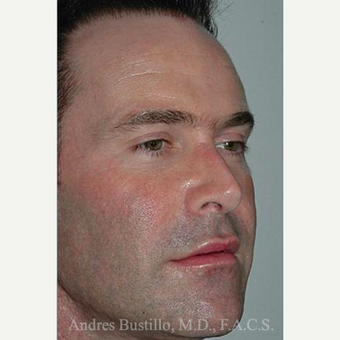 25 year old man treated with Revision Rhinoplasty after 3460634