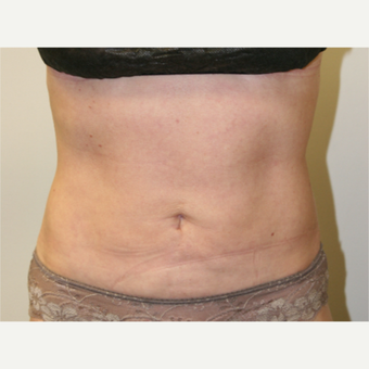 45-54 year old woman treated with Vaser Liposuction after 2998754
