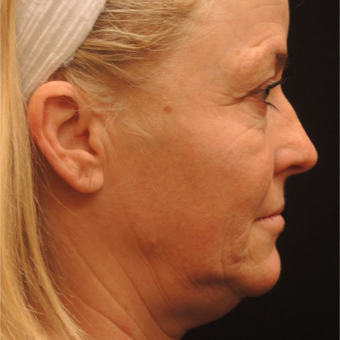 45-54 year old woman treated with Ultherapy before 3466801