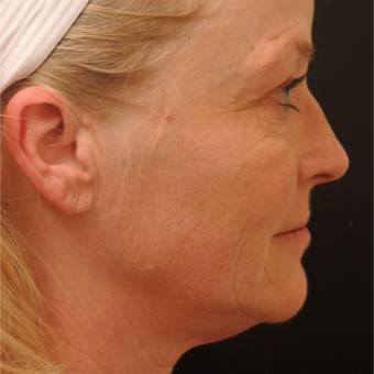 45-54 year old woman treated with Ultherapy after 3466801
