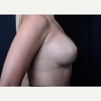25-34 year old woman treated with Breast Augmentation after 3384218