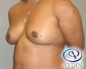 45-54 year old woman treated with Breast Augmentation before 3376814