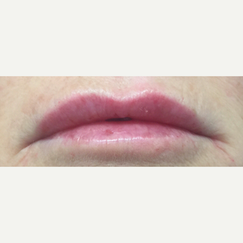 45-54 year old woman treated with Lip Augmentation after 3842555
