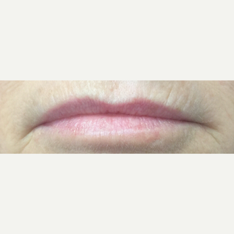 45-54 year old woman treated with Lip Augmentation before 3842555