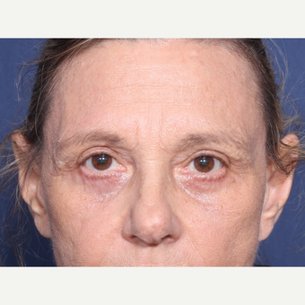 65-74 year old woman treated with Eyelid Surgery (view 1 of 2) after 3181148