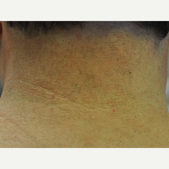 45-54 year old woman treated with Laser Hair Removal after 3219700