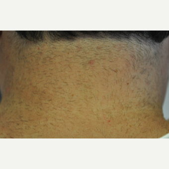 45-54 year old woman treated with Laser Hair Removal before 3219700