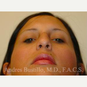 23 year old woman treated with Rhinoplasty before 3461020