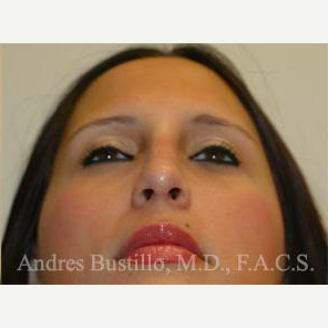 23 year old woman treated with Rhinoplasty after 3461020