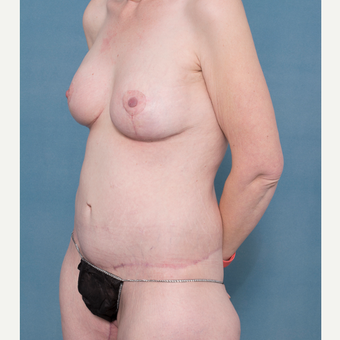 37 year old woman treated with Body Lift, Breast Augmentation with Mastopexy after 3520350