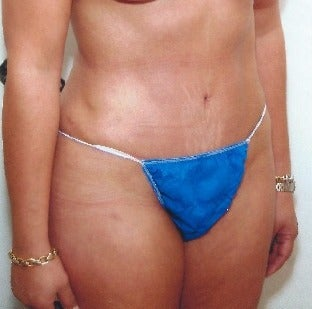 34 year old woman treated with Mini Tummy Tuck after 1616000