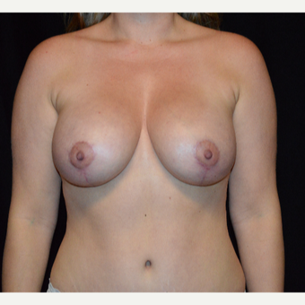 35-44 year old woman treated with Breast Augmentation after 3617866