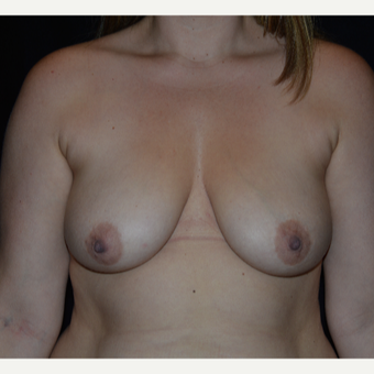 35-44 year old woman treated with Breast Augmentation before 3617866