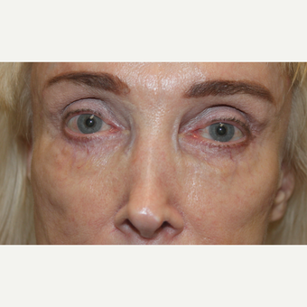 65-74 year old woman treated with Juvederm after 3241059